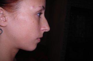 Фото профиль нос горбинкой до моделирования
