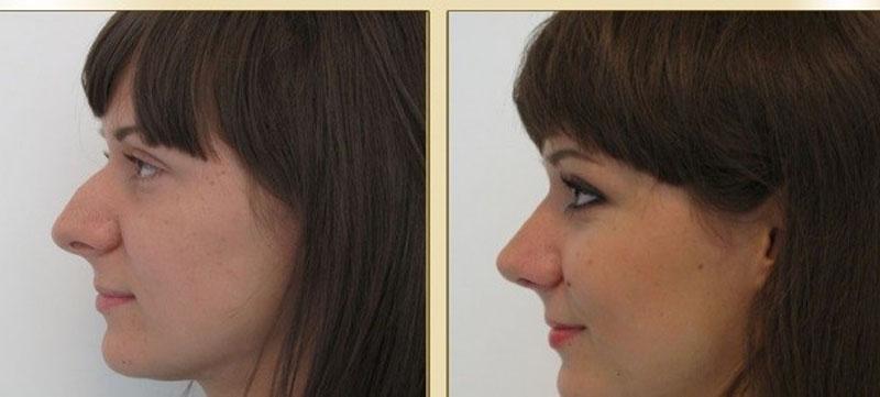 Проблема горбинка на носу и её решение