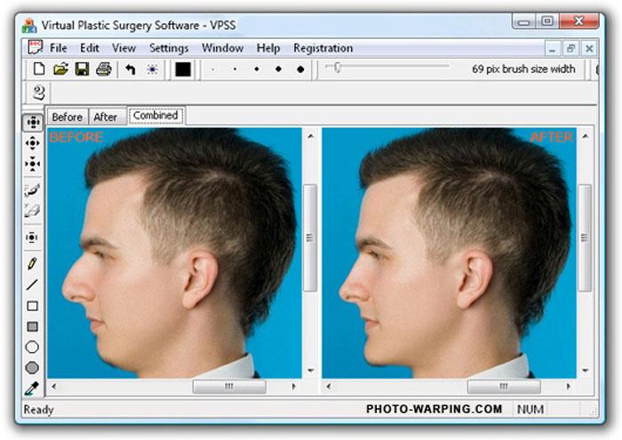 Моделирование носа до пластической операции
