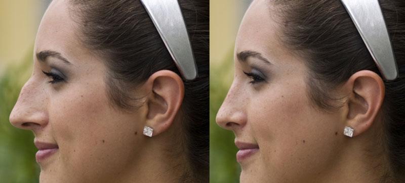 Удаление горбинки на носу - до и после