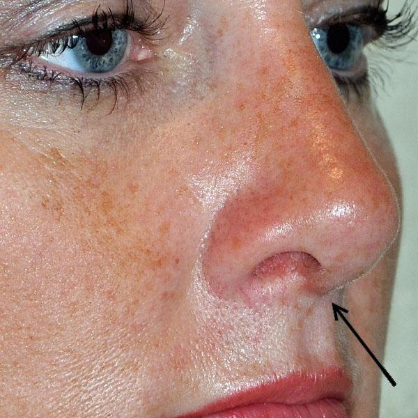 рубец после исправления спинки носа