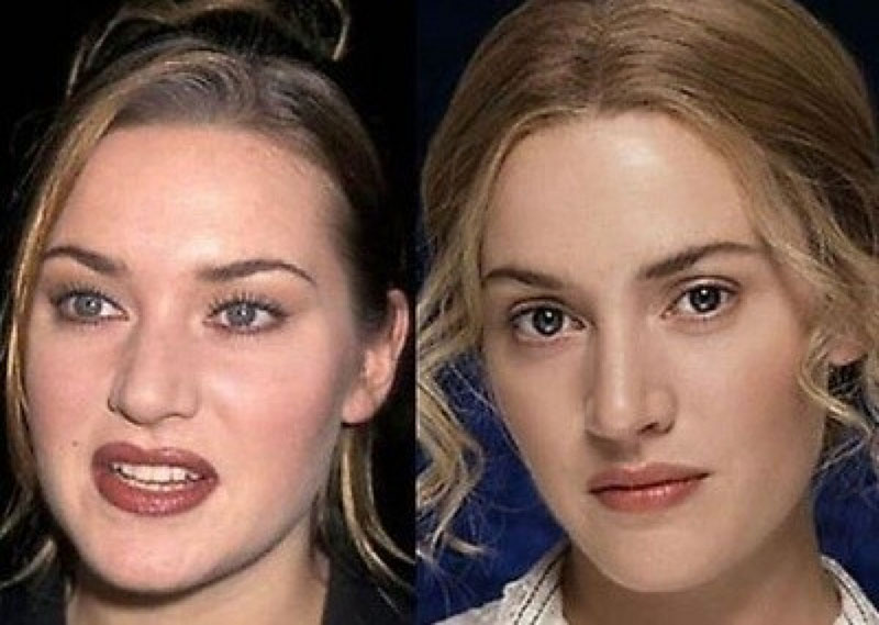 Актриса из Титаника сделала себе ринопластику