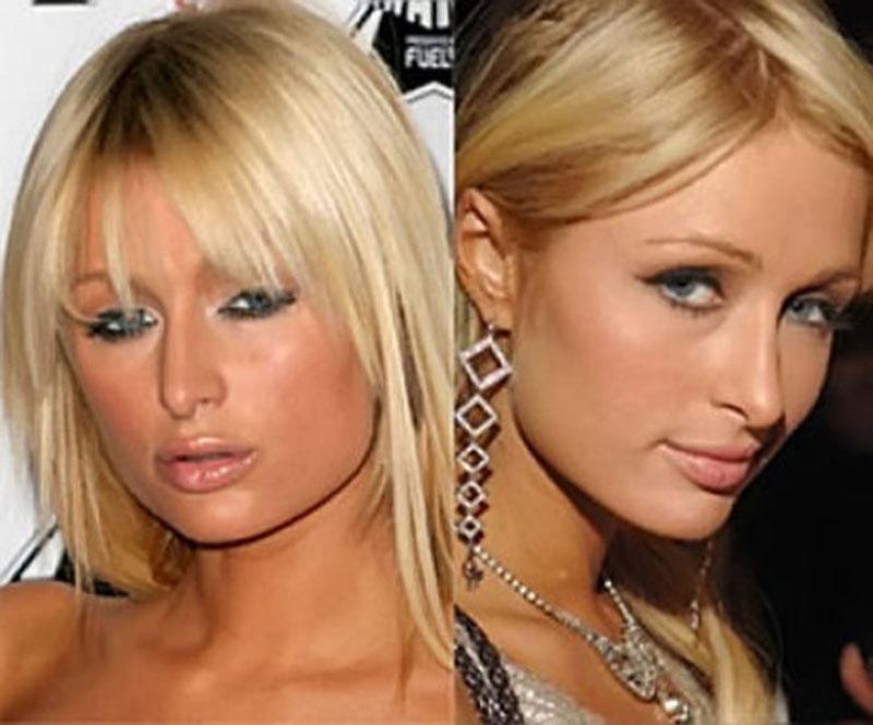 Девушка увеличила свою привлекательность сделав пластику носа
