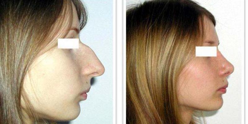 У девушки был удлиненный нос