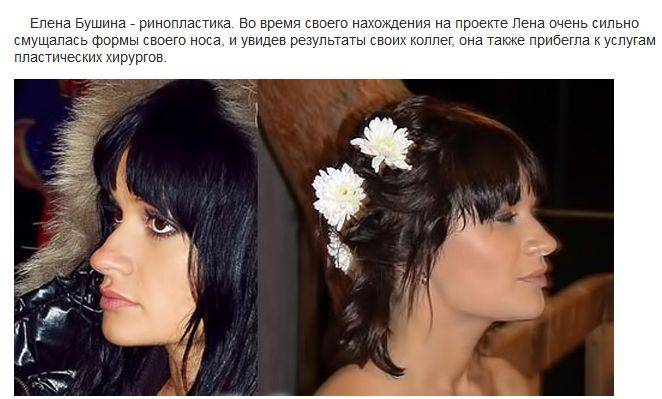 елена бушина фото до и после пластики богу