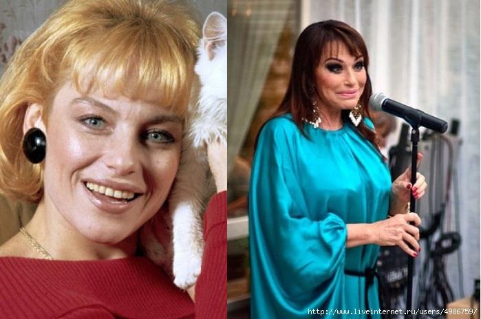 Ирина Понаровская изменилась после ринопластики
