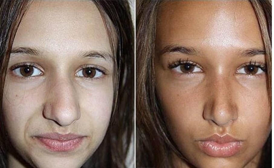 ринопластика больших носов фото