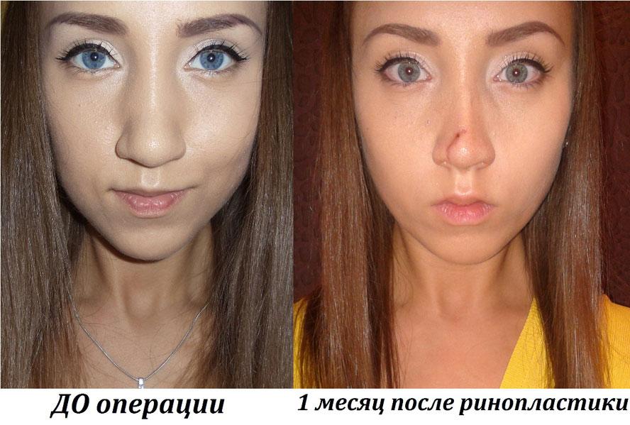 фото результата месяц после операции