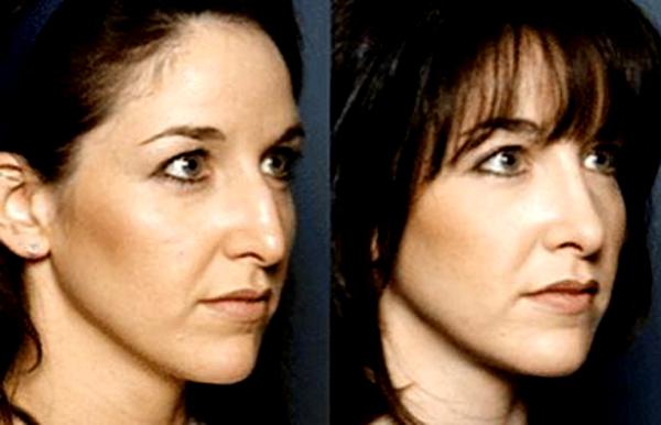 Преображение девушки после пластики носа