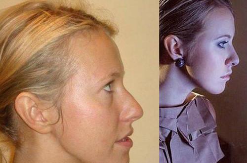 Преображение знаменитой женщины после пластики носа