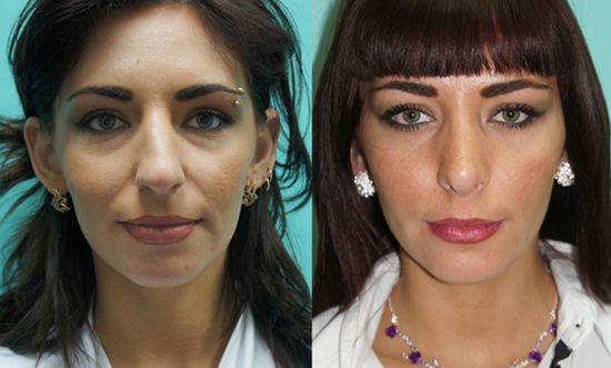 Преображение женщины после пластики носа