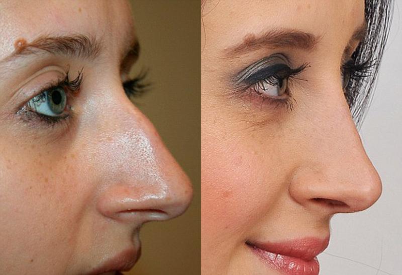 Женщина исправила нос горбинкой
