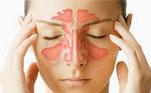 фото Синуситы - Причины, симптомы и лечение