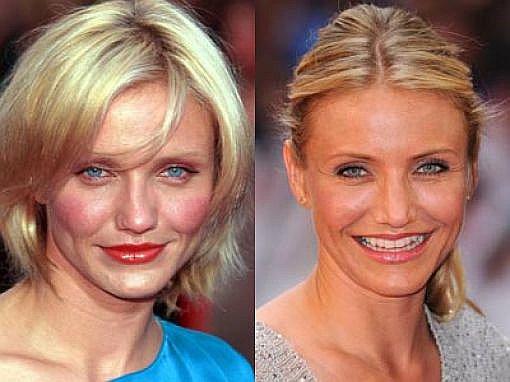 Фото после 40 до и после