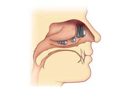 как выглядят полипы в носу