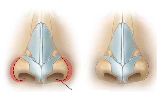 Уменьшение носовых крыльев