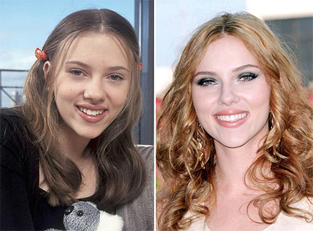 Курносый нос у знаменитости до и после