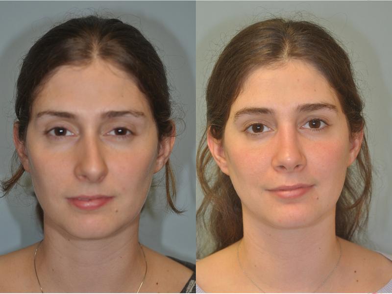 До и после операции по исправлению кривого носа