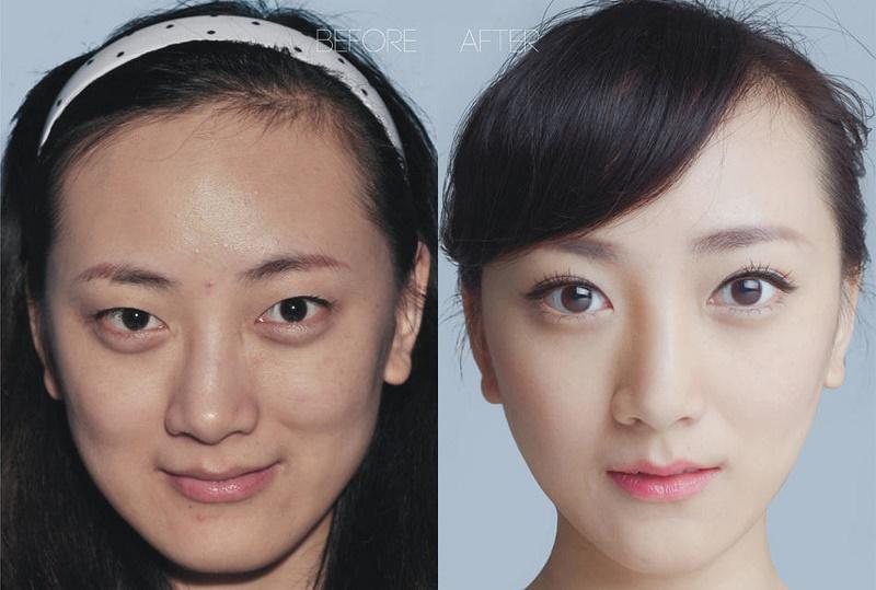Особенности строения азиатского типа лица