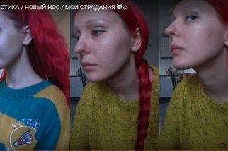 Анастасия Шпагина ринопластика