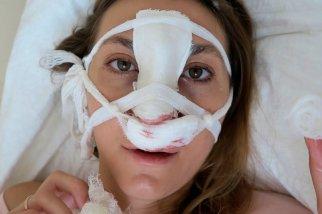 Открытая ринопластика – реабилитация