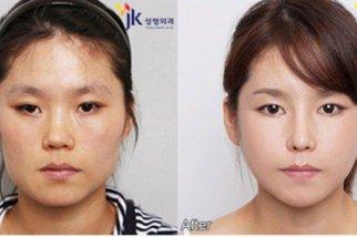 Поднять спинку азиатского носа
