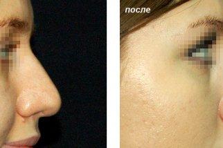 К чему приводит желание иметь узкий кончик носа