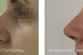 Закрытая и открытая ринопластика: в чем различие