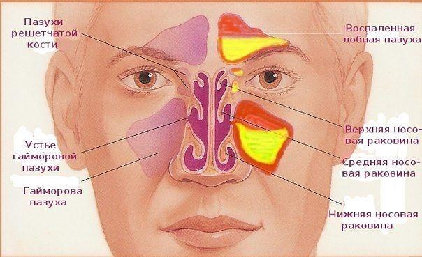 Профессиональное лечение гайморита у взрослых