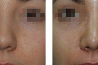 Широкая спинка носа или как избавиться от неприятного дефекта
