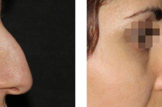 Фотографии после ринопластики помогают решиться на операцию